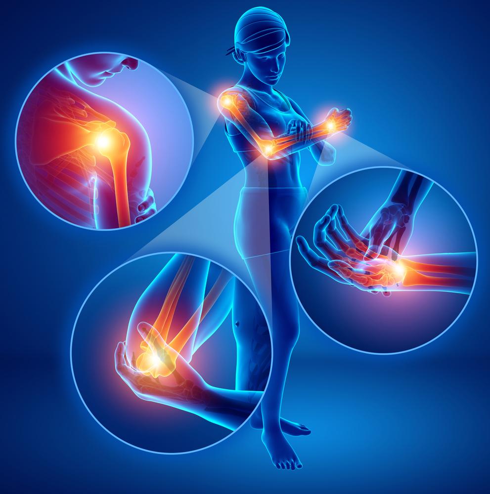 pain in upper extremities digital image