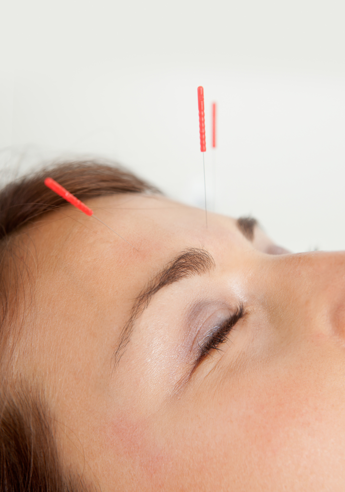 closeup of acupuncture on forehead