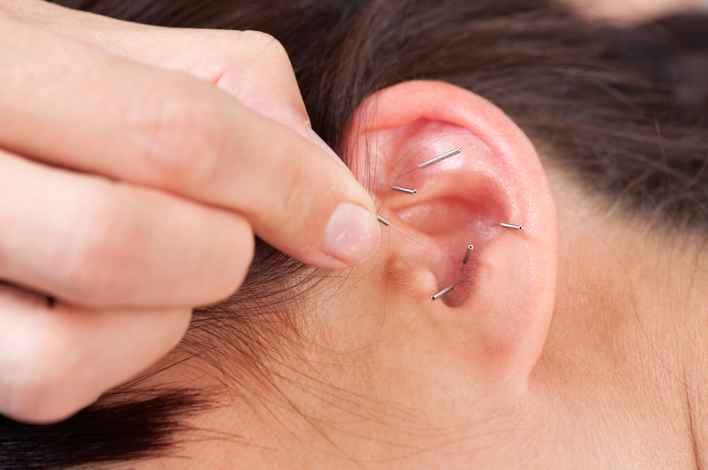 acupuncture in ear