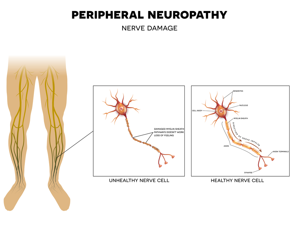 treat neuropathy with acupuncture