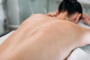 Keller TX acupuncture