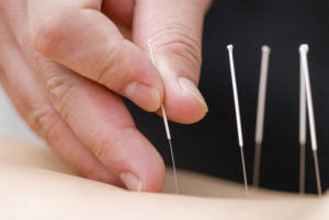 doctor performing acupuncture up close image of hand and needles