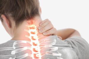 neck pain image female